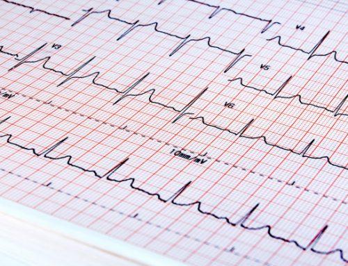 EKG Derivasyonları